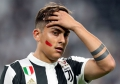 Juventus: Dybala al Real Madrid?